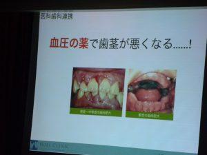 医科歯科連携/ノエルクリニック心臓血管外科歯科/栄養指導/カウンセリング